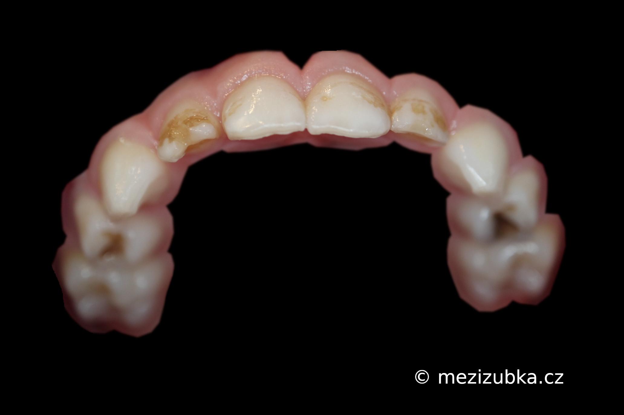 Zubní kaz : mléčné řezáky a čtyřky
